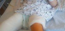 Doslej je bila Maša že 7-krat po dva meseca tako ovita v mavec. Z mamo Natalijo upata, da bo te kalvarije kmalu konec. Foto: Natalija Zorman